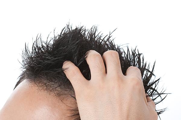 男性型脱毛症:AGA